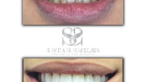 Say AHHHHHHH! Get to know 5 Star Smiles